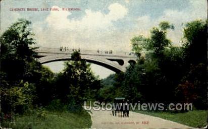 Concrete Bridge, Lake Park - MIlwaukee, Wisconsin WI Postcard